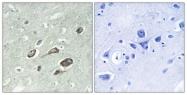 A0829-1 - Calmodulin