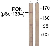A0839-1 - CD136 / MST1R