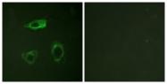 A0842-1 - CD18 / ITGB2
