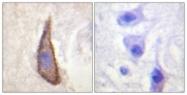A0843-1 - CD226 / DNAM1
