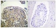 A0844-1 - CD227 / Mucin-1 / MUC1