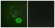 A0871-1 - HGF receptor