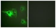 A0883-1 - Cytokeratin 8
