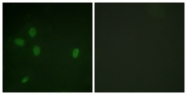 A0886-1 - TP53BP1