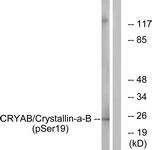 A0895-1 - Alpha-crystallin B chain / CRYA2