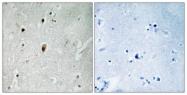 A0906-1 - DNA-PKcs / PRKDC / XRCC7