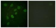 A0908-1 - DNA-PKcs / PRKDC / XRCC7