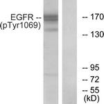 A0912-1 - EGFR / ERBB1