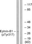 A0916-1 - Ephrin-B1