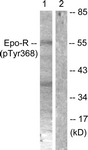 A0917-1 - Erythropoietin receptor