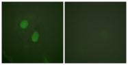 A0921-1 - Estrogen receptor alpha