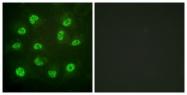A0922-1 - Estrogen receptor beta