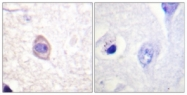 A0953-1 - CD119 / IFNGR1