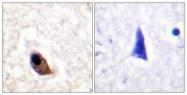 A0959-1 - NMDA Receptor 2A