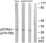 A0965-1 - CDKN1B / KIP1