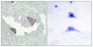A0969-1 - CD140a / PDGFRA