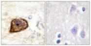 A0971-1 - CD140b / PDGFRB