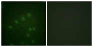 A1021-1 - Aurora kinase B