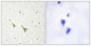 A1024-1 - Calsenilin