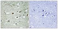 A1041-1 - hnRNP-C1/C2 / HNRNPC