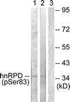 A1043-1 - hnRNP-D0 / HNRNPD