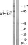 A1044-1 - HGS / HRS