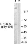 A1056-1 - CDw210a / IL10RA
