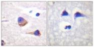 A1080-1 - Tyrosine-protein kinase JAK3