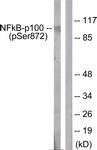 A1104-1 - NFKB2 / NF-kappa-B p100/p52