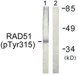 A1117-1 - RAD51