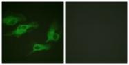 A1131-1 - Beta-2 adrenergic receptor