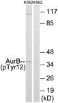 A1133-1 - Aurora kinase B
