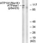 A1136-1 - ATP1A1