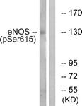A1145-1 - NOS3