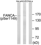 A1148-1 - FANCA
