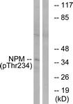 A1166-1 - Nucleophosmin