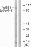 A1186-1 - WEE1 / Wee1-like protein kinase
