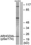 A1189-1 - ARHGDIA / GDIA1