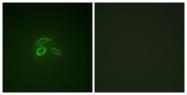 A1193-1 - CD227 / Mucin-1 / MUC1