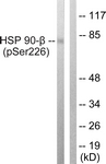 A1210-1 - HSP90AB1 / HSP90 beta