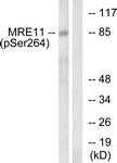 A1217-1 - MRE11