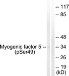 A1218-1 - Myogenic factor 5 (MYF5)