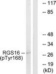 A1232-1 - RGS16 / RGSR