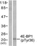A7001-1 - EIF4EBP1 / 4E-BP1
