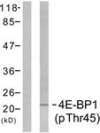 A7002-1 - EIF4EBP1 / 4E-BP1