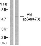 A7004-1 - AKT1 / PKB