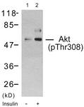 A7005-1 - AKT1 / PKB