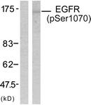 A7060-1 - EGFR / ERBB1