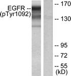 A7061-1 - EGFR / ERBB1
