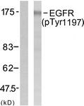 A7064-1 - EGFR / ERBB1